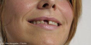 Zahnlücke und Implantat