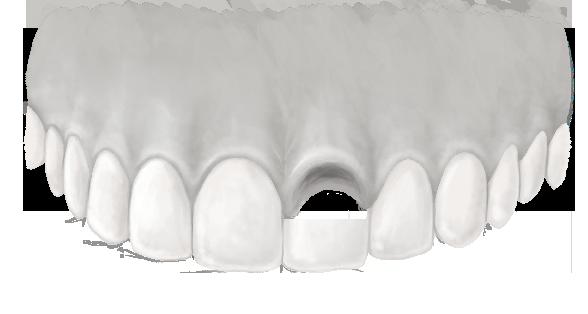 ein Zahn fehlt