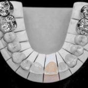Zahnersatz bei kleinem Defekt