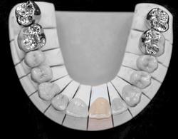 Zahnersatz für einen Zahn
