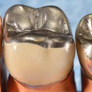 günstige Zahnkronen von dent for me