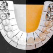 Zahnersatz für einzelne Zähne