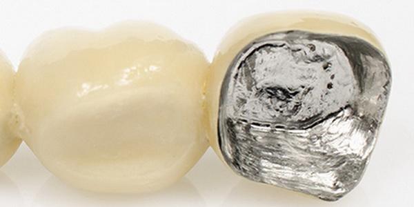 Zahnkrone vollverblendet