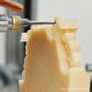 Material für Zahnersatz: Kunststoff