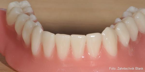 Vollprothse oder Totale für zahnlosen Kiefer