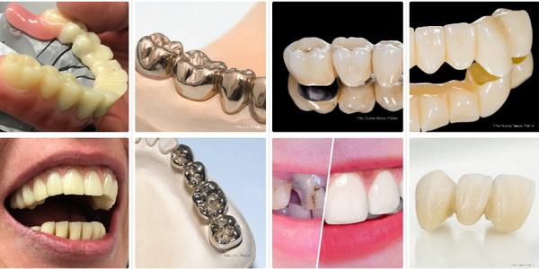 Lösungen für Zahnbrücken