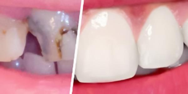 Vergleich vor und nach dem Einsetzen einer Zahnbrücke