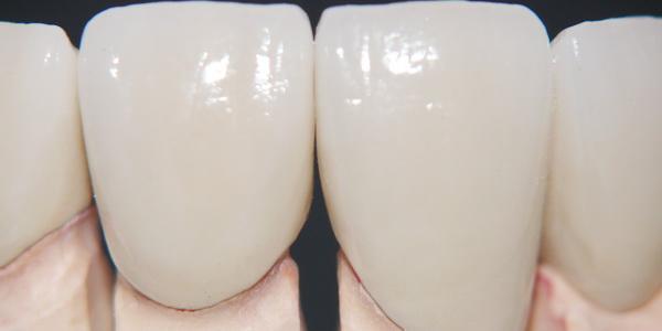 Zahnkrone Keramik