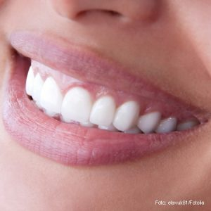 Zahnersatz-vollverblendet