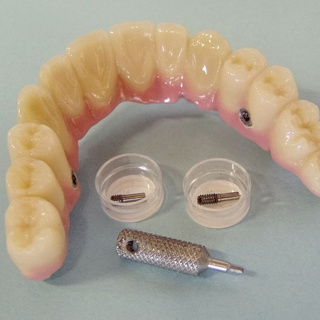 Zahnprothese auf Implantat