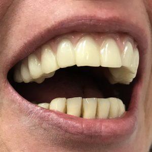 Hochwertiges Provisorium mit Zahnfleich
