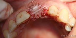 Die Implantation
